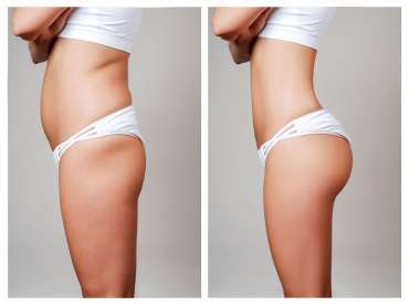 10 things to know about Liposuction